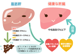 肝 は 脂肪 と 脂肪肝とは 脂肪肝の症状・原因・対策・食事 病気・症状チェック