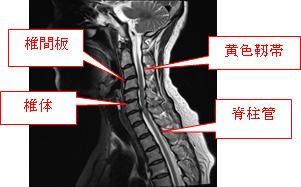 Mri 頚椎