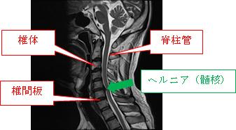 ヘルニア チェック 頚椎 症状